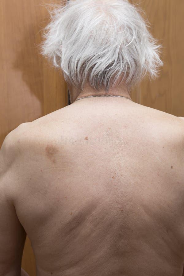 Nevo da pele da parte traseira imagens de stock royalty free