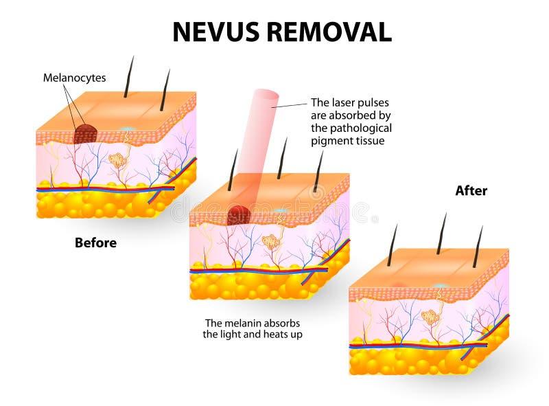 Nevus Removal royalty free illustration