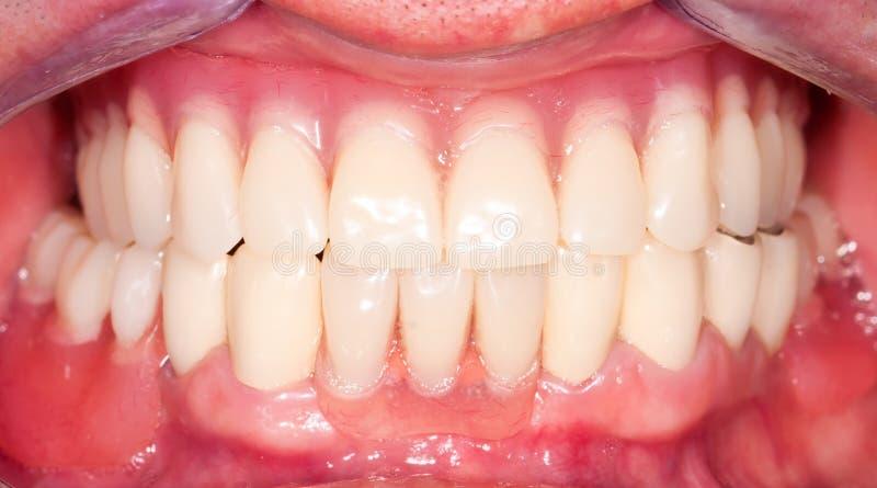 Dental prosthesis. New dental prosthesis, upper and lower denture stock photos