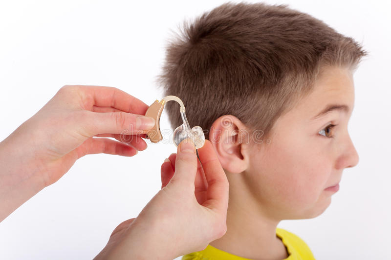 New hearing aid for a young boy stock image