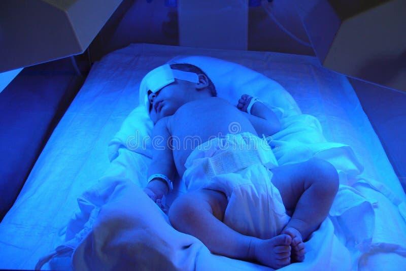 Newborn jaundice royalty free stock image
