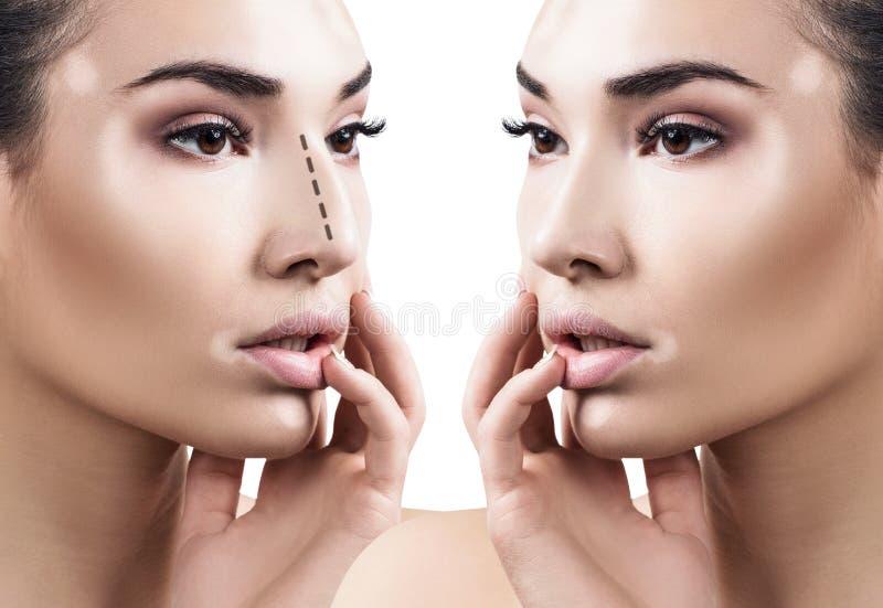 Nez femelle avant et après la chirurgie esthétique images stock