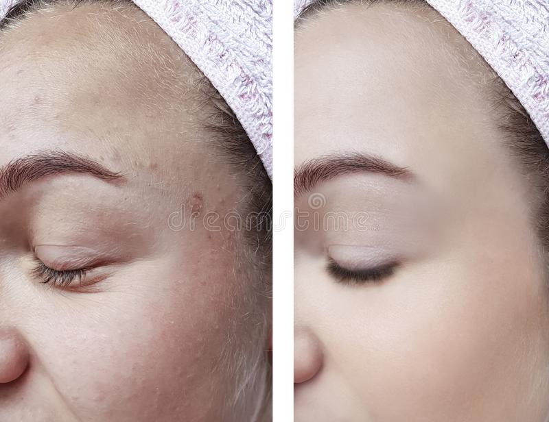 girl beauty skin wrinkles eyes removal before and after cosmetology procedures royalty free stock photo