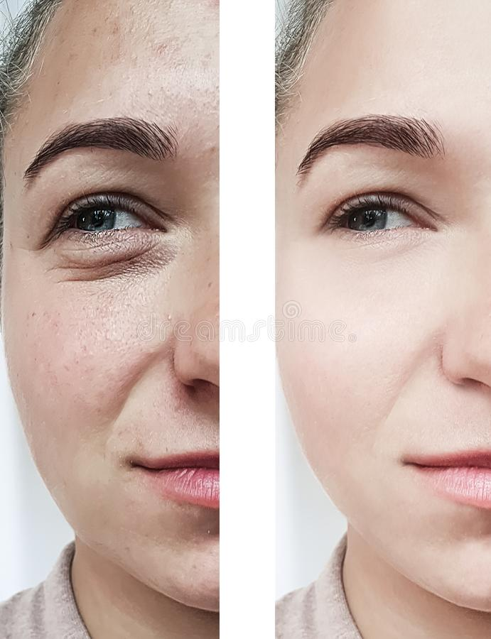 girl beauty wrinkles eyes before and after cosmetology procedures royalty free stock photos