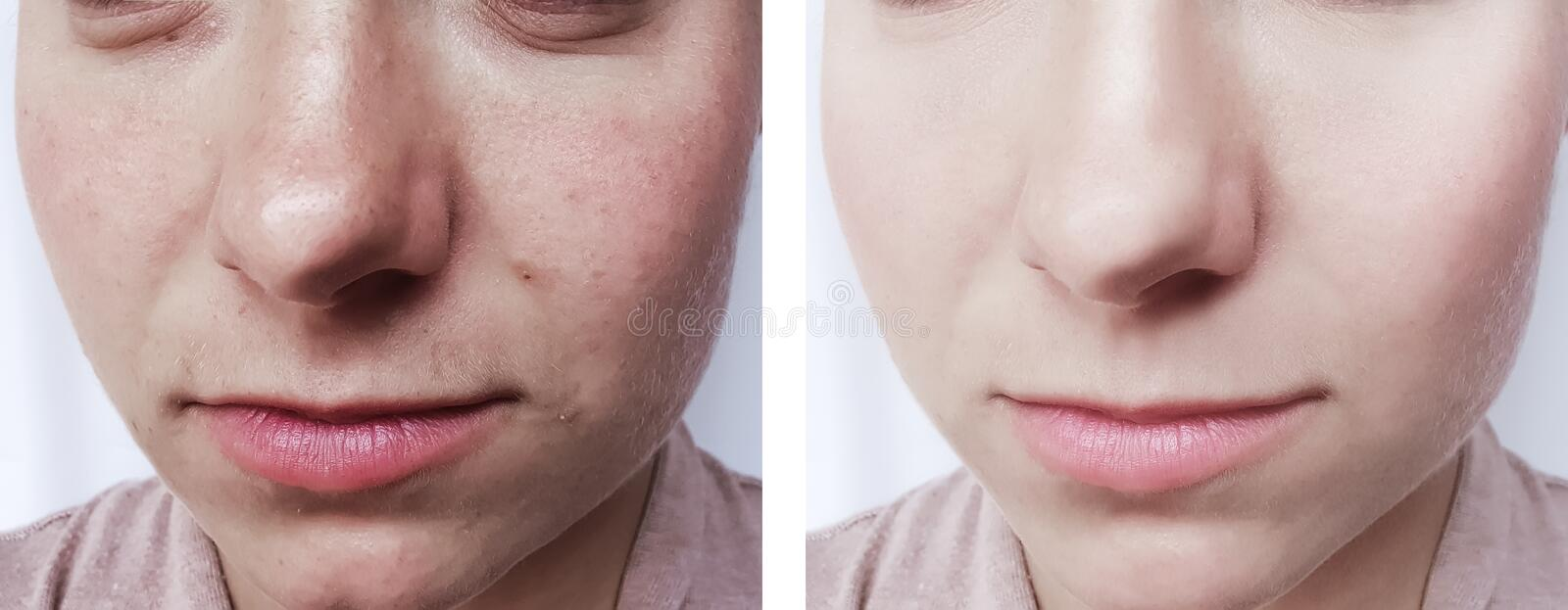 girl beauty wrinkles eyes removal before and after cosmetology procedures stock images
