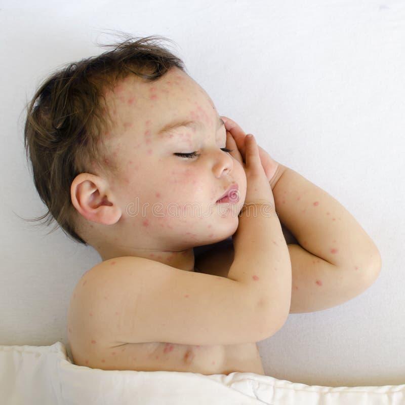 Niño con varicela fotografía de archivo
