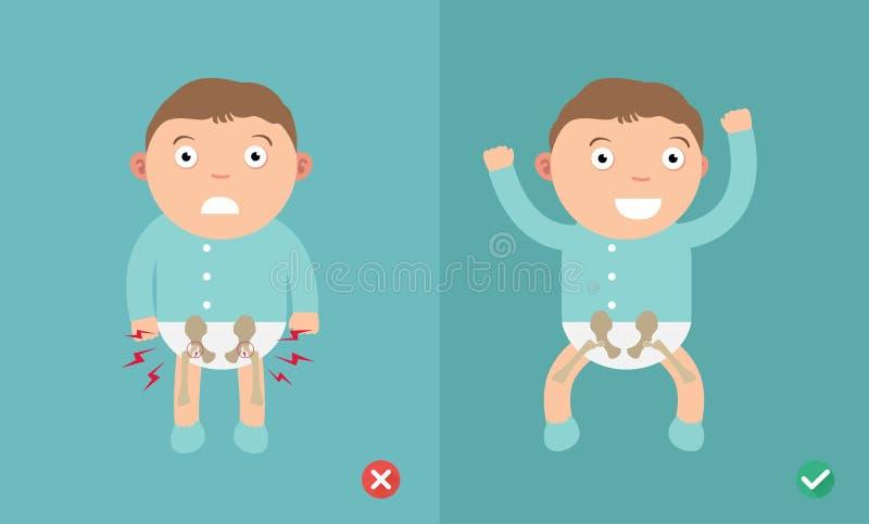 Niño de las posiciones mejores y peores para la prevención de la displasia de la cadera stock de ilustración