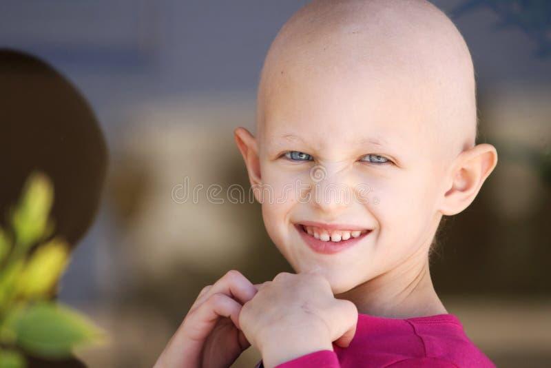 Niño del cáncer foto de archivo