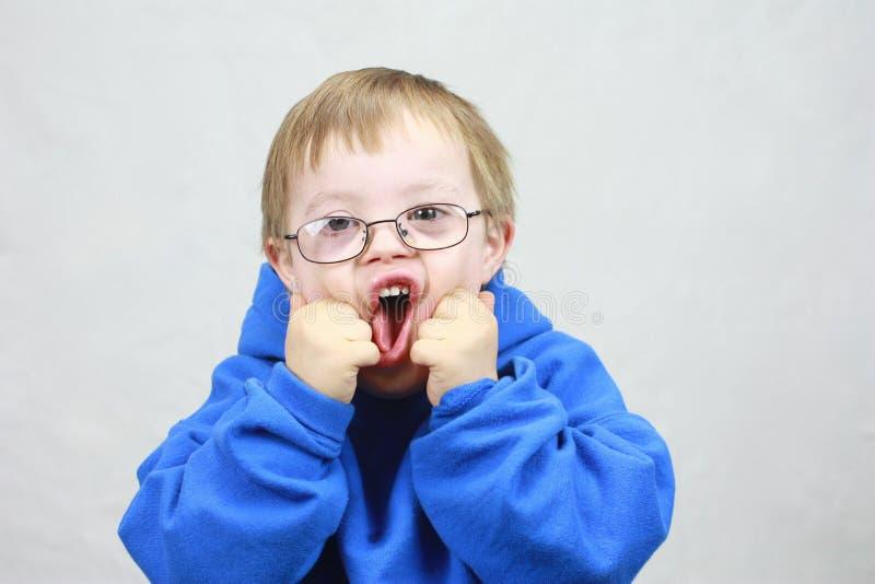 Niño pequeño con síndrome de las llanuras fotografía de archivo