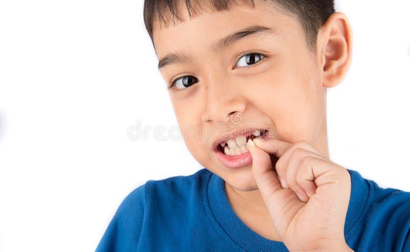 Niño pequeño que muestra a dientes de bebé el cierre desdentado para arriba que espera los nuevos dientes fotos de archivo