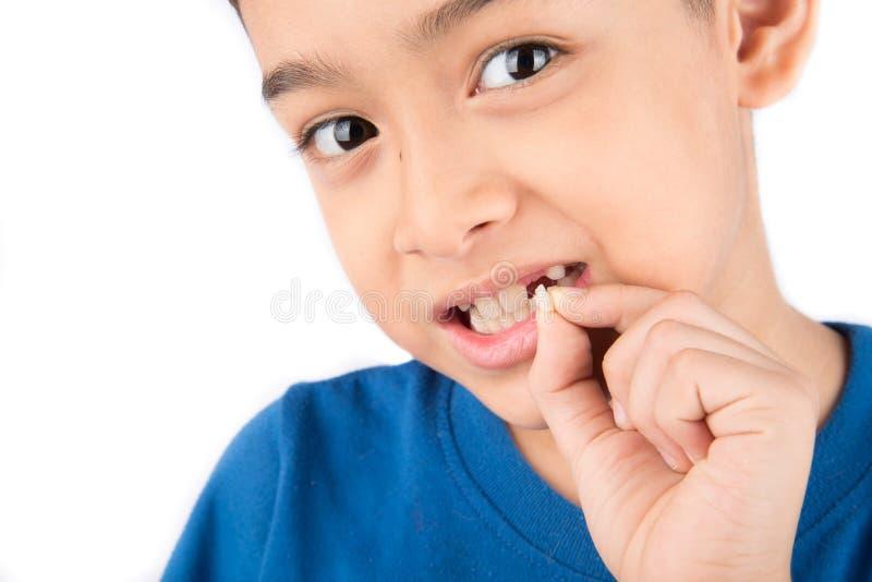 Niño pequeño que muestra a dientes de bebé el cierre desdentado para arriba que espera los nuevos dientes imágenes de archivo libres de regalías