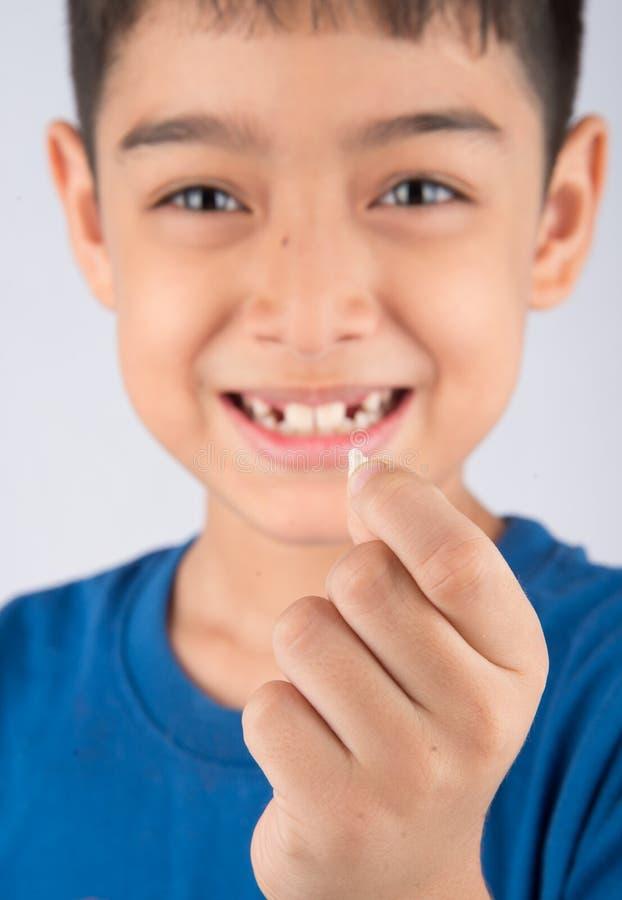 Niño pequeño que muestra a dientes de bebé el cierre desdentado para arriba que espera los nuevos dientes fotos de archivo libres de regalías