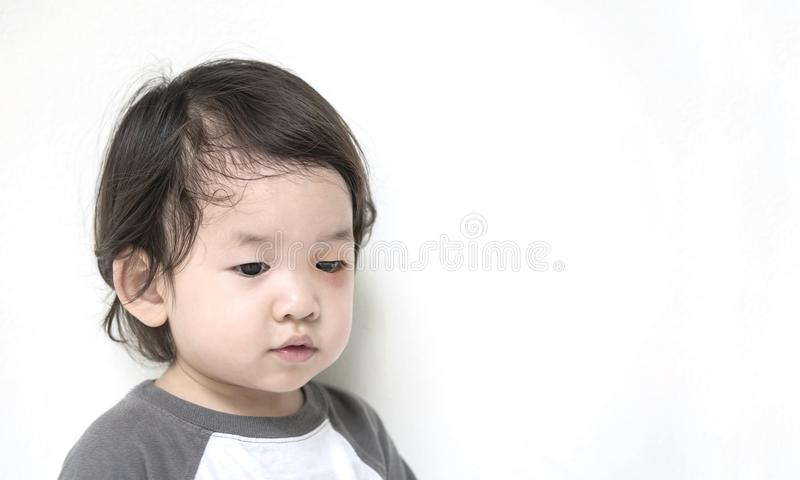 Niño pobre del primer con el ojo hinchado en violencia de la parada contra concepto de los niños foto de archivo