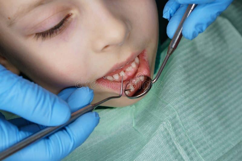 Ni?a en cl?nica dental foto de archivo libre de regalías