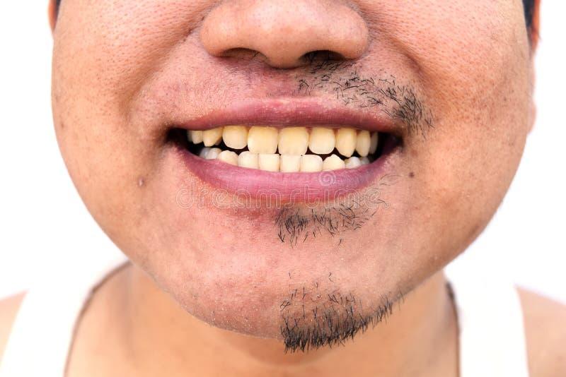 Niektóre wąsy po tym jak wycofanie wąsy na nawierzchniowej młodej azjatykciej mężczyzna twarzy skórze no wziąć opieki przez długi zdjęcie royalty free