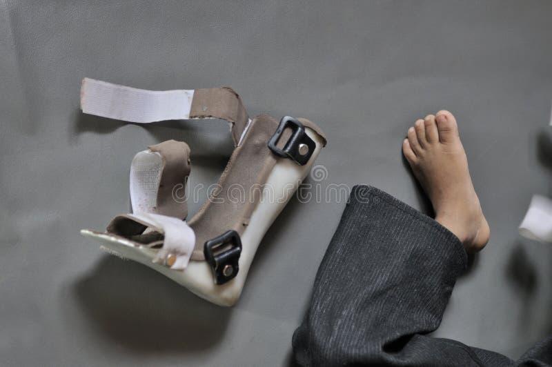 Niepełnosprawni dzieci. zdjęcie stock