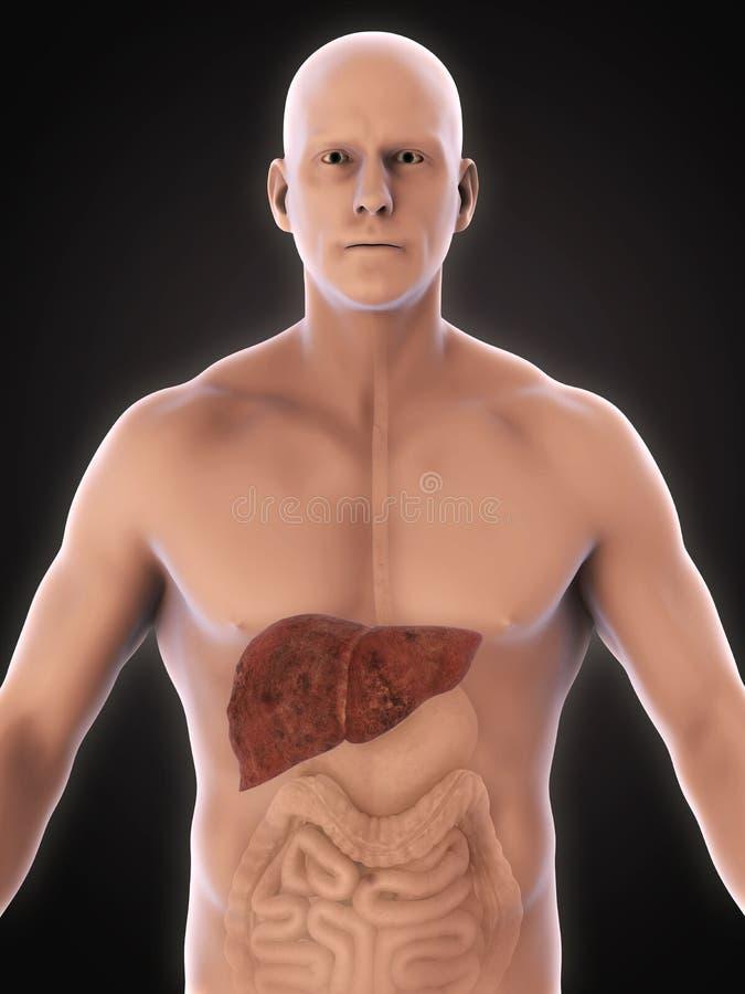 Niezdrowa Wątrobowa anatomia ilustracji