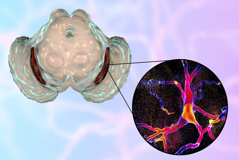 Nigra de Substantia en enfermedad del ` s de Parkinson stock de ilustración