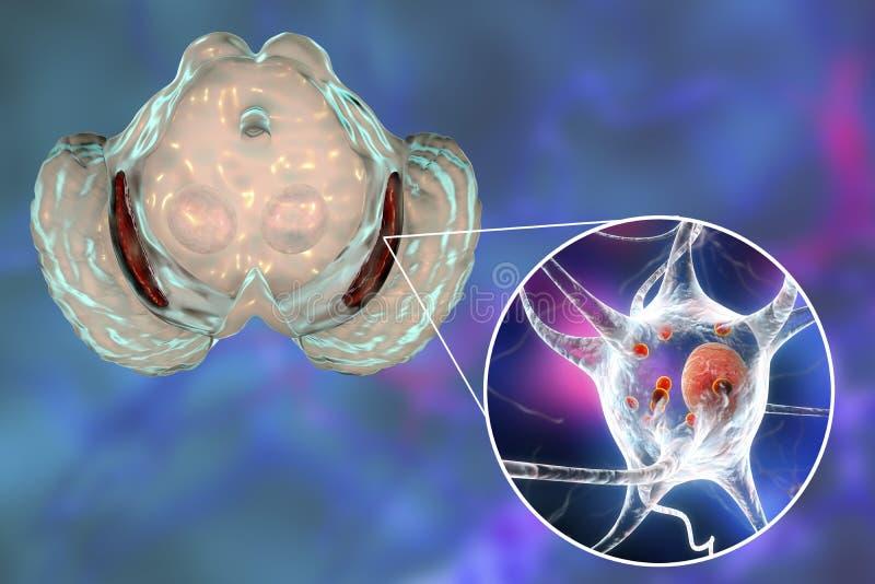 Nigra de Substantia en Parkinson' enfermedad de s ilustración del vector