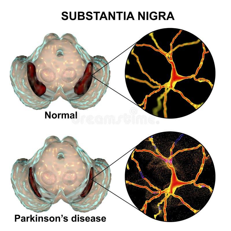Nigra Substantia στον κανόνα και Parkinson ` s στην ασθένεια στοκ φωτογραφία με δικαίωμα ελεύθερης χρήσης