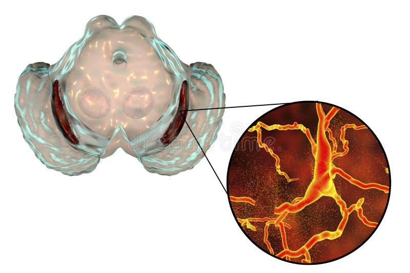 Nigra Substantia в заболевании ` s Parkinson иллюстрация вектора