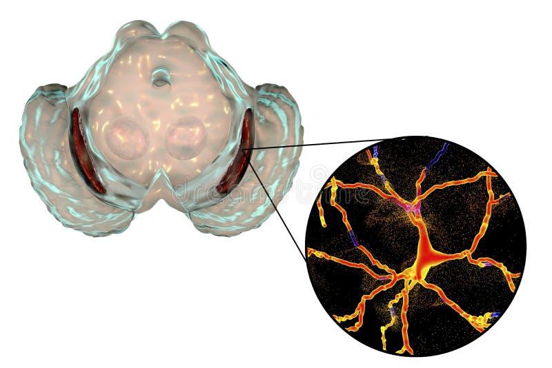 Nigra Substantia в заболевании ` s Parkinson бесплатная иллюстрация