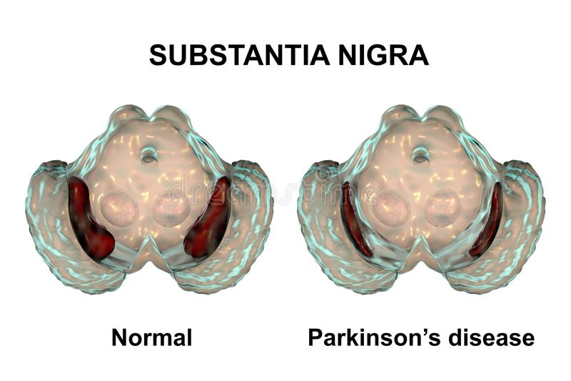 Nigra Substantia в норме и в заболевании ` s Parkinson иллюстрация вектора