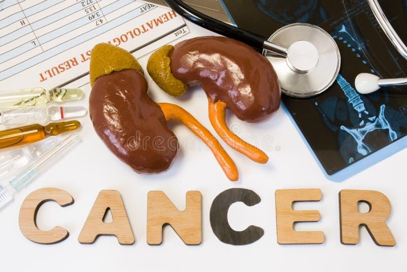 Njurecancerbegrepp Anatomisk form av njure med near ordcancer för binjur- lögner som omges av uppsättningen av prov, analys, drog arkivfoto