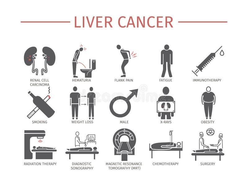 Njurecancertecken orsaker diagnostik Plan symbolsuppsättning Abstrakt bakgrundskort och linjer royaltyfri illustrationer