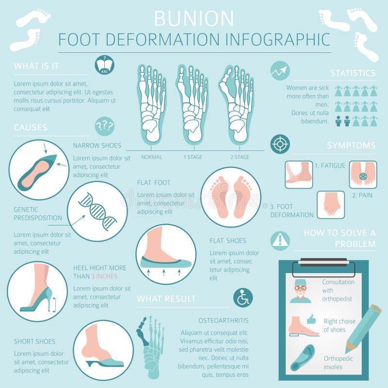 Nożna deformacja jako medyczny desease infographic Przyczyny bunio ilustracji