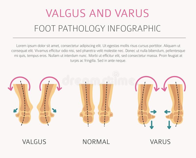 Nożna deformacja jako medyczny desease infographic Valgus i varu ilustracji