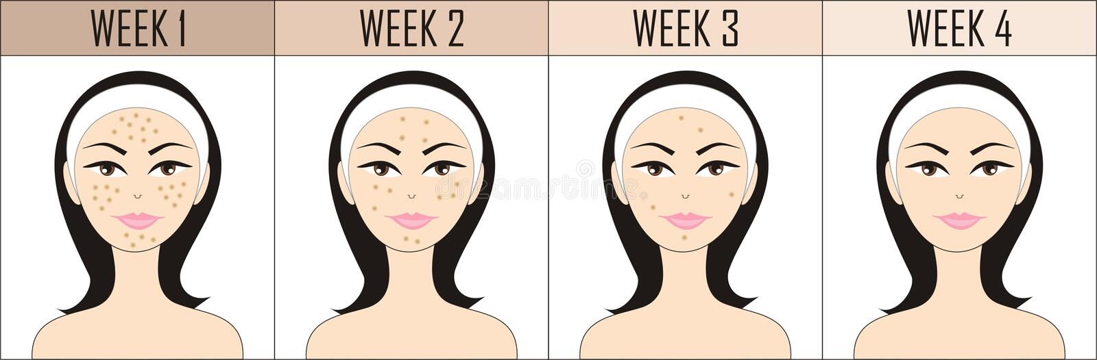 No acne royalty free illustration