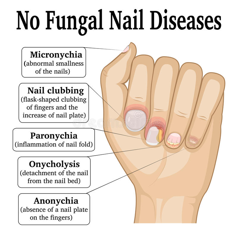 No Fungal Nail Disease royalty free illustration