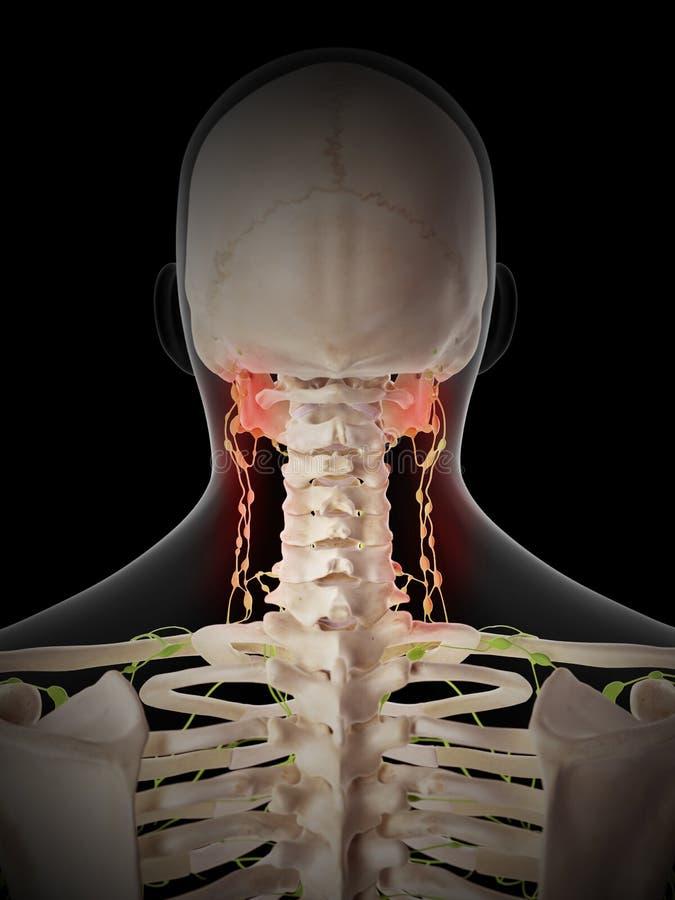 Nodos linfáticos dolorosos ilustración del vector