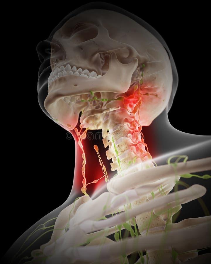 Nodos linfáticos dolorosos libre illustration
