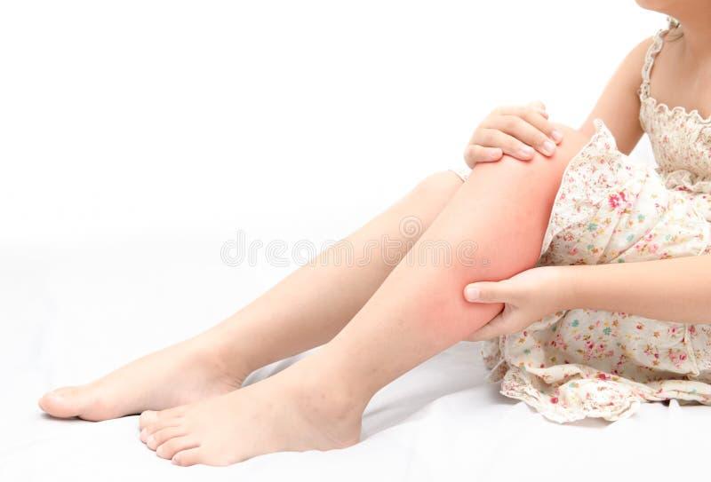 Noga ból lub łydka mięsień w dziewczynie na łóżku odizolowywającym fotografia royalty free