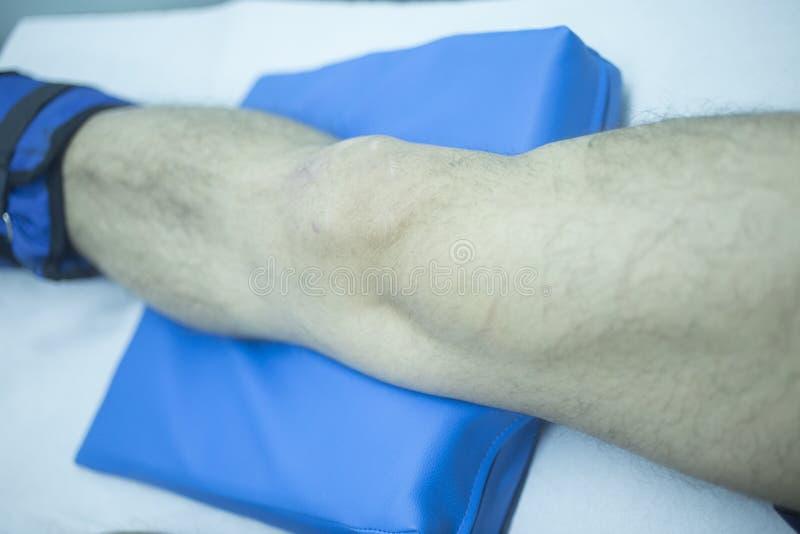 Noga zdradzony mężczyzna w fizjoterapii fotografia royalty free