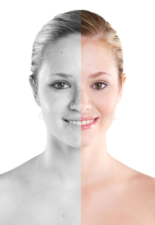 Download Before And After Stock Photo - Image: 19789420