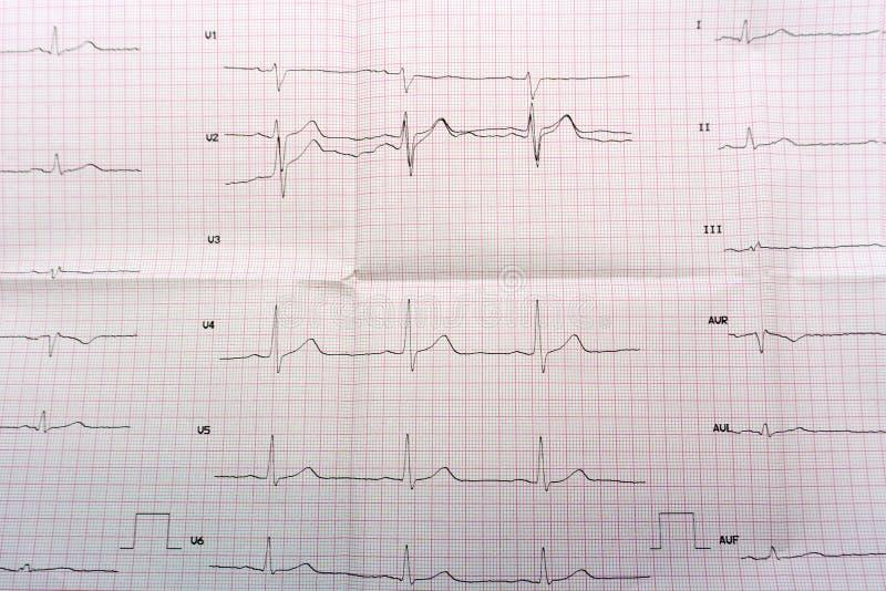 Noodsituatiecardiologie en intensive care ECG met scherpe periode van groot-brandpunts wijdverspreid voorafgaand myocardiaal infa stock foto