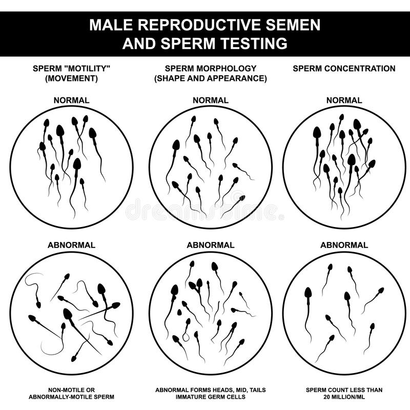 Normal and abnormal sperm stock illustration