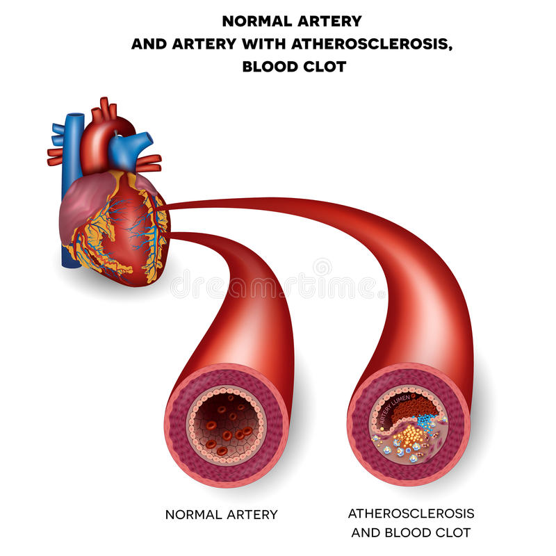 Normal artery and unhealthy artery royalty free illustration