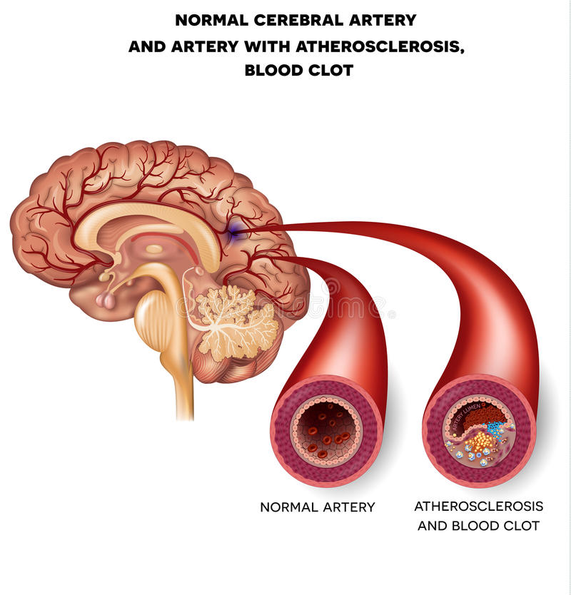 Normal cerebral artery and artery with blood clot. Normal cerebral artery and artery with atherosclerosis and blood clot. Blocked blood flow by the thrombus vector illustration