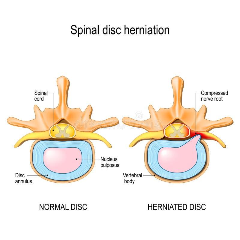 Normal diskett och ryggrads- diskettherniation i cervikala kotor stock illustrationer