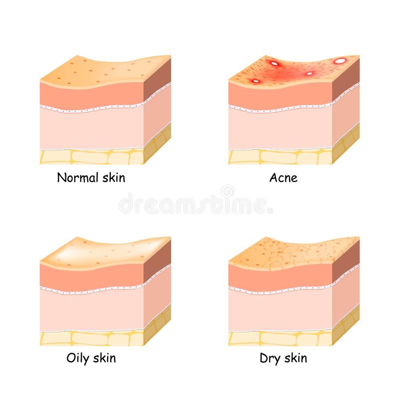 Normal, dry and oily skin. Acne. Skin disorder royalty free stock photography