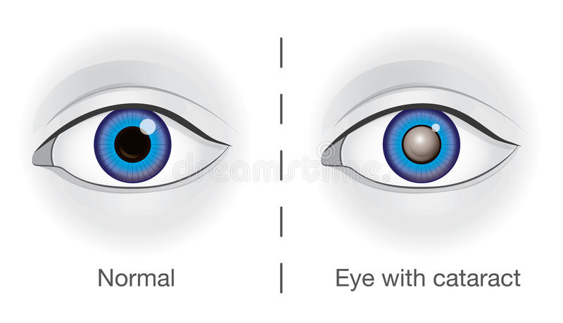 Normal eye and lens clouded by cataract. The difference between normal eye and lens clouded by cataract. Illustration about health and eyesight vector illustration
