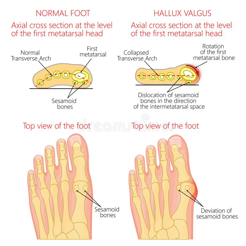 Normal fot och Hallux valgus med rotation av det första mematar stock illustrationer