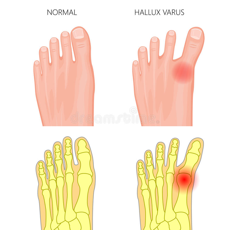 Normal fot och Hallux varus royaltyfri illustrationer