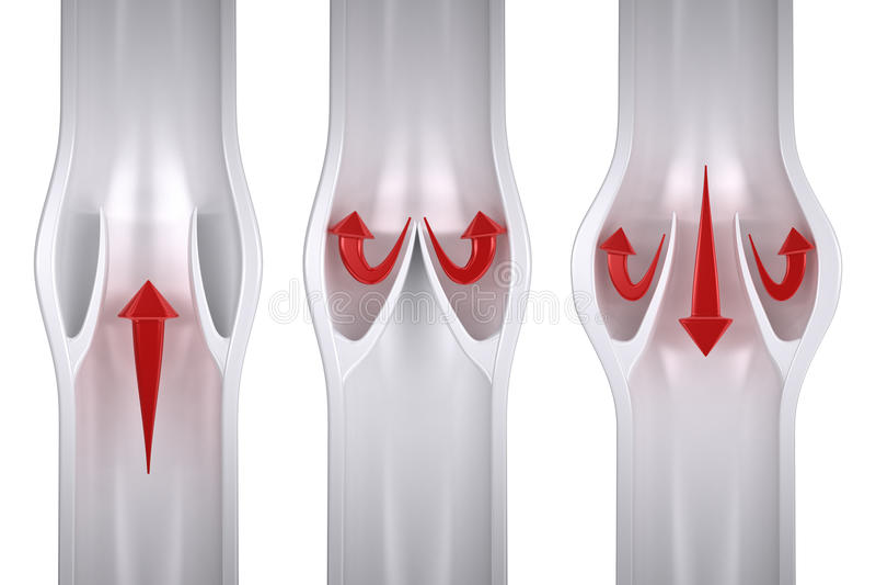 Normal gegen variköses - Ader-Anatomie stock abbildung