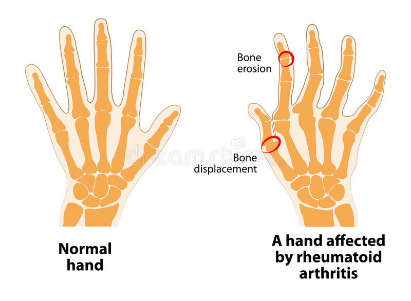 Normal hand and Rheumatoid Arthritis royalty free illustration