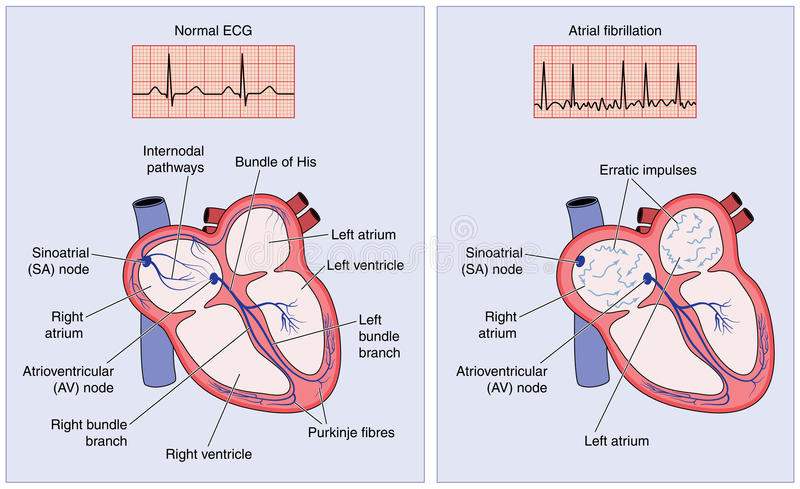 Normal heart electrical conduction and atrial fibrillation vector illustration